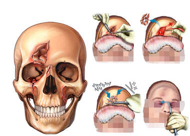 Depressed Frontal, Orbital and Maxillary Fractures with Full Facial Flap Fixation Surgery