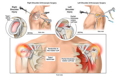 Bilateral Shoulder Injuries and Surgical Repairs