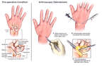 Right Wrist Injuries with Arthroscopic Surgical Repairs