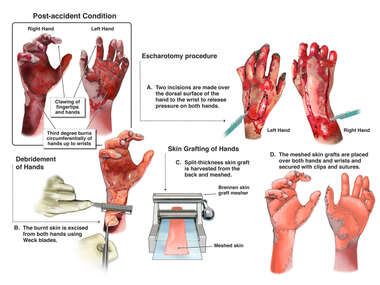 Debridement and Skin Grafting of Hands