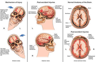 Male Side to Side Head Injury with Subsequent Brain Damages