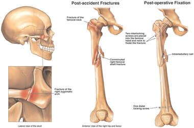 Post-accident Femoral and Facial Fractures with Surgical Fixation