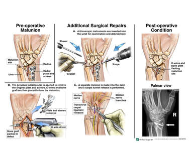 Malunion of Distal Radius with Additional Surgical Repairs