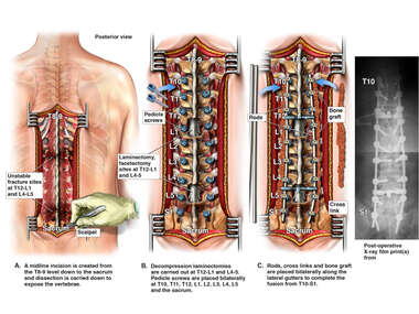 T10-S1 Posterior Spinal Fusion Surgery