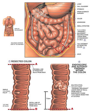 Colon Lesions