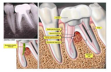 Region of Decalcifications after Dental Work