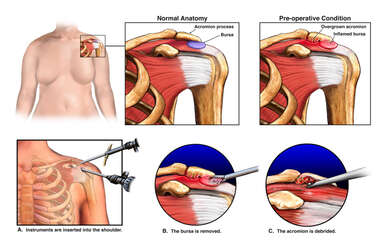 Left Shoulder Impingement Syndrome with Arthroscopic Decompression Surgery