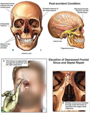 Complex Facial Fractures with Surgical Repair