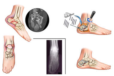 Fractures of the Right Foot and Left Ankle with Surgical Fixation of the Foot Fractures