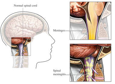 Spinal Meningitis