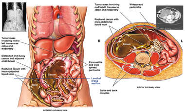Ruptured Cecum Secondary to Cancerous Tumors