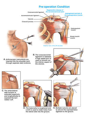Left Shoulder Injuries with Arthroscopic and Open Surgical Repairs
