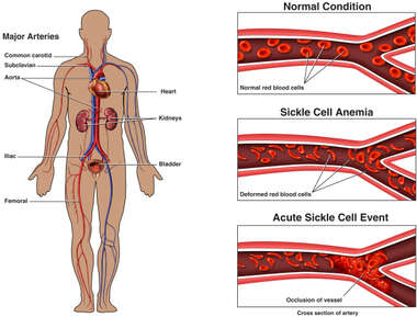 Sickle Cell Anemia Event with Arterial Blockage