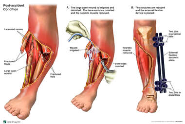 Initial Stabilization of the Right Lower Leg