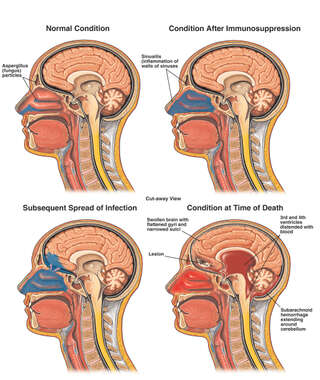 Spread of Sinus Infection into the Brain, Resulting in Brain Edema and Hemorrhage