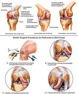 Bilateral Knee Injuries with Arthroscopic Surgeries