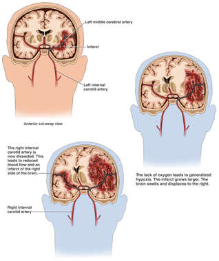 Progression of Brain Ischemia