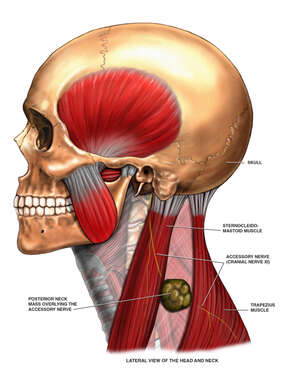 Left Posterior Neck Mass