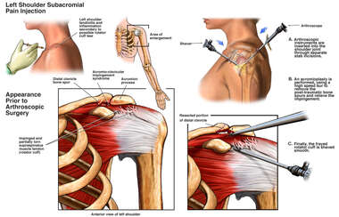Shoulder Surgery - Arthroscopic Subacromial Decompression