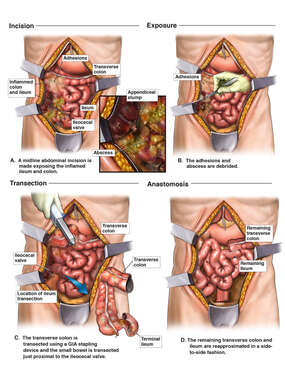 Post-operative Right Colon Abscess and Adhesions with Subsequent Hemicolectomy