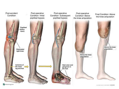 Progression of Right Leg Injury and Surgeries