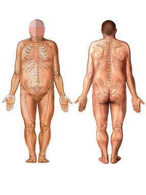 Anterior and Posterior Views of Heavy Male Figure and Skeleton