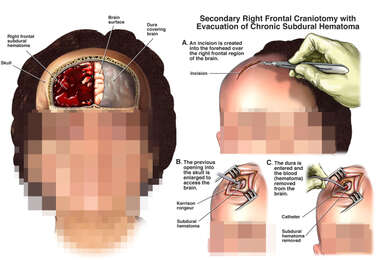 Right Subdural Hematoma with Craniotomy Surgery