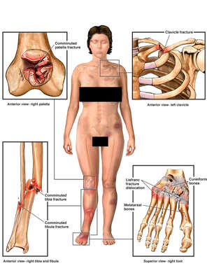 Female figure with Fractures to the Knee, Collar bone, Lower leg and Foot
