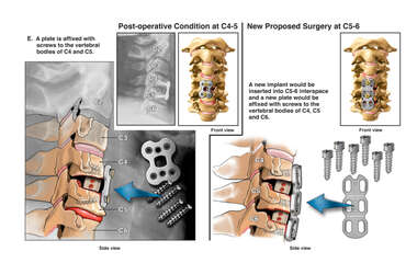 Cervical Spine Injury with Anterior Discectomy and Fusion