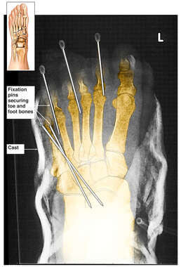 Left Foot Fixation