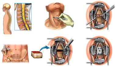 C6-7 Anterior Cervical Discectomy and Fusion with Synthes Plate
