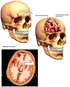 Post-accident Head and Brain Injuries