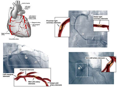 Coronary Arteries with Angiogram Films