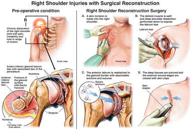 Right Shoulder Injuries with Surgical Reconstruction