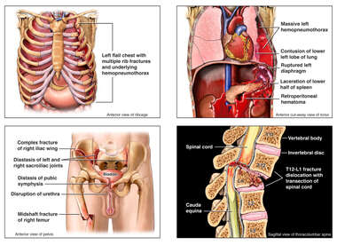 Injuries to the Chest wall, Thorax-Abdomen, Pelvis and Spine