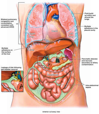 Post-operative Bile Leak with Resulting Infection and Adult Respiratory Distress Syndrome (ARDS)