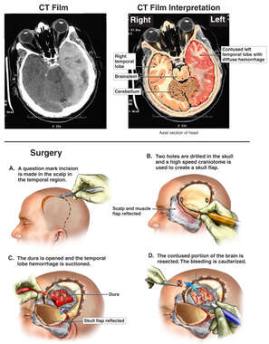 Brain Surgery - Traumatic Brain Injury with Surgical Repair