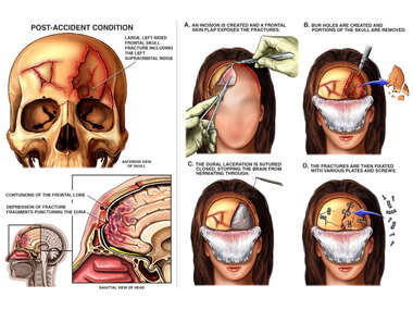 Female with Post-accident Skull Fracture and Full Face Flap and Surgical Craniotomy Repairs