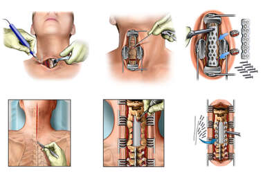 Multilevel Anterior and Posterior Cervical Discectomy and Fusion