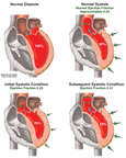 Heart Attack - Deteriorating Cardiac Ejection Volume Following Myocardial Infarction
