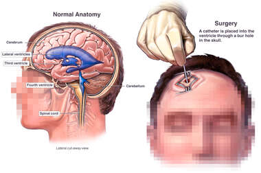 Brain Surgery - Ventricular System of the Brain and Placement of Intraventricular Catheter