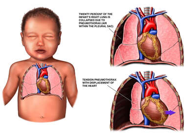 Pneumothorax in Infant