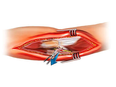 Ulnar Nerve Transposition