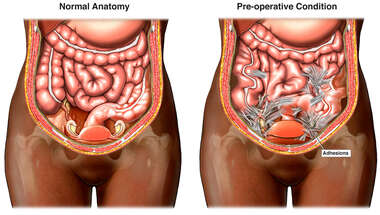 Comparison of Normal Abdominal Anatomy to Pre-operative Condition with Scarring and Adhesions