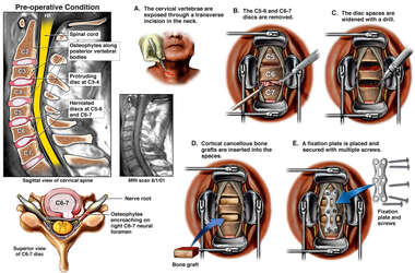 C5-6, C6-7 Cervical Discectomy and Fusion