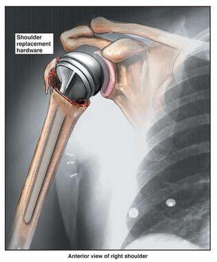 Shoulder Replacement Hardware