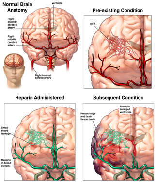 Rupture of Cerebral Arteriovenous Malformation (AVM)