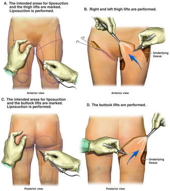 Initial Liposuction and Dermo-lipectomy of the Thighs