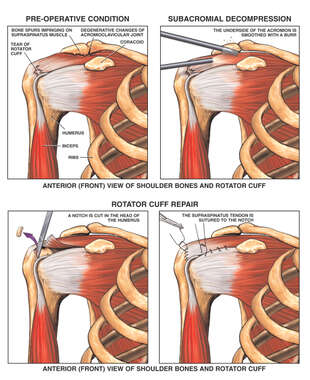 Post-accident Right Shoulder Rotator Cuff and AC Joint Injuries with Surgical Repairs