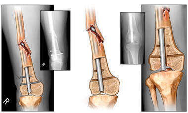 Surgical Removal of Interlocking Screws with Subsequent Collapse of Intramedullary Fixation